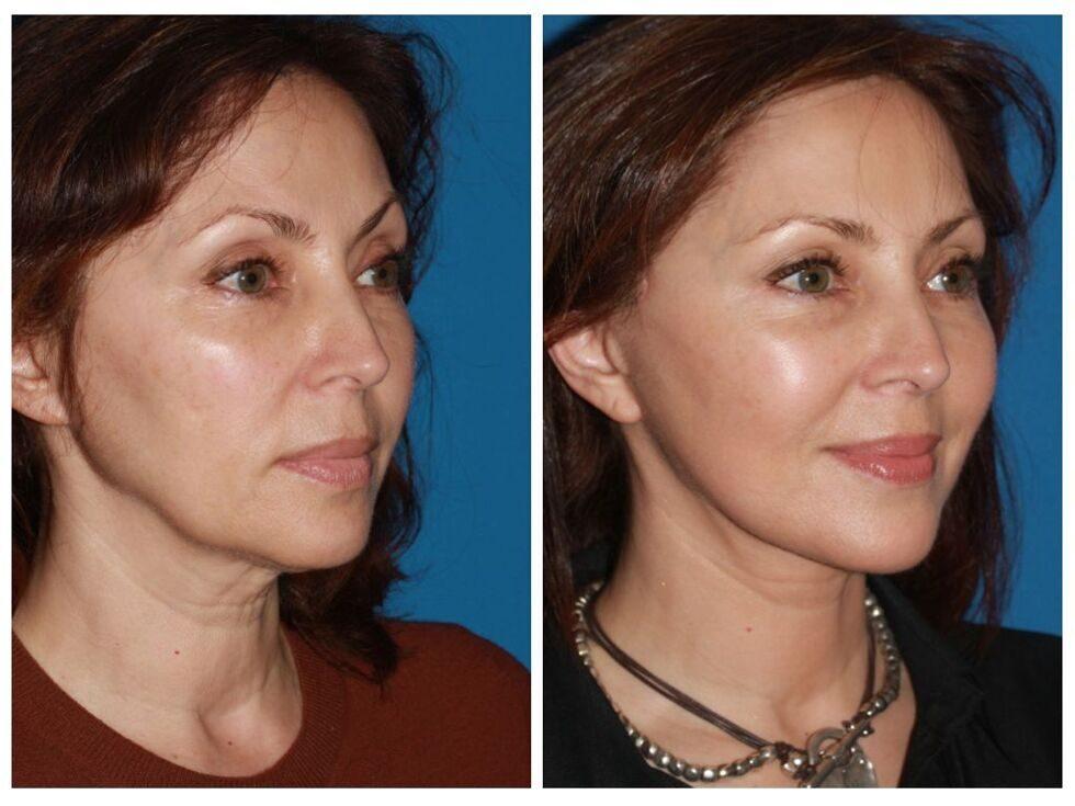 много грузин подтяжка лица фото до и после отзывы стрижка
